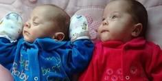 Relacionada gemelos