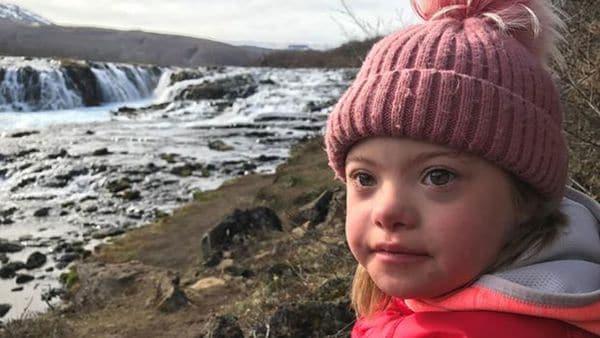 En Islandia el Síndrome de Down está a punto de desaparecer