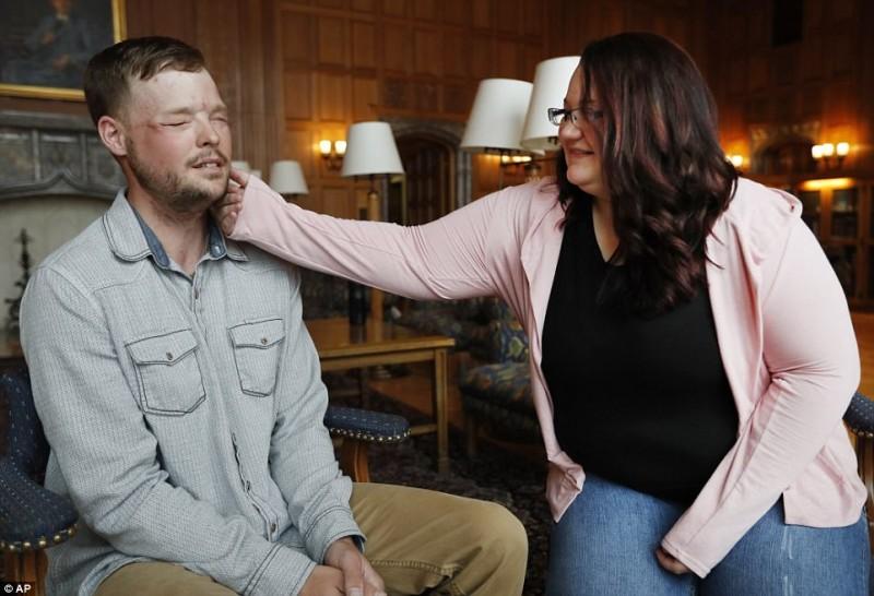 Hombre recibe trasplante de rostro y ¡Así reaccionó la esposa del donante al verlo!