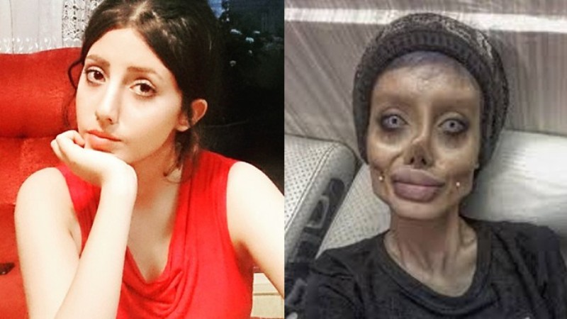 Joven iraní se hace 50 cirugías para parecerse a Angelina Jolie