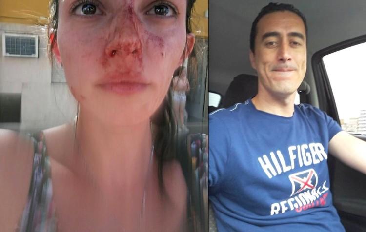 Sanchez golpea a areli alonso argentinga rosario