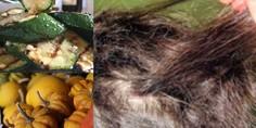 Relacionada mujeres pierden cabello por comer calabazas