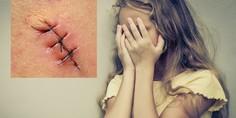 Relacionada agresion a ni a china sutura puntos