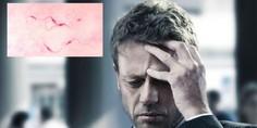 Relacionada dolor de cabeza parasitos