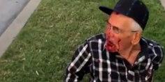 Relacionada golpean anciano mexicano eu