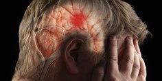 Relacionada derrame cerebral