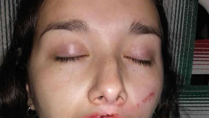 Se resistió a un abuso y le desfiguraron el rostro