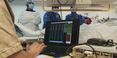 Relacionada ablaci ncardiaca pce  2